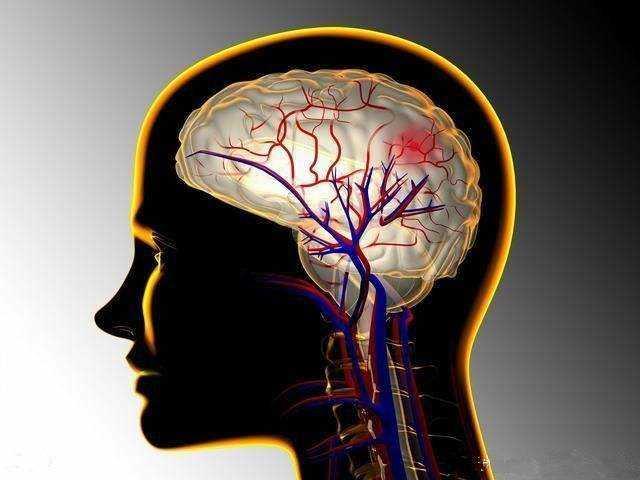 脑出血前兆你知道吗?这6种症状可能是脑出血!